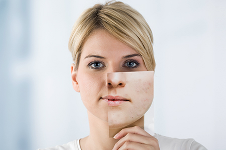 Mini-serial despre acnee I - știi de ce te afectează?
