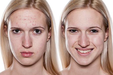 Mini-serial despre acnee II - Cum scapi de acnee?